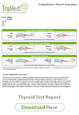 Thyroid Report Sample